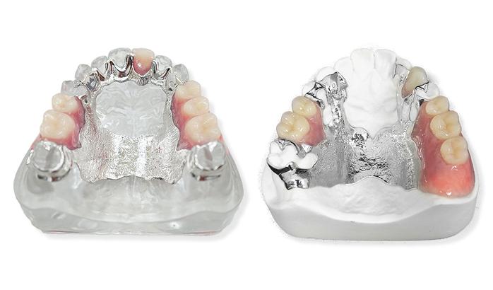 金属床義歯(きんぞくしょうぎし)